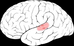 geluid-hersenen